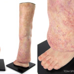 anatomical leg model with lymphedema