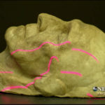 3D scanning of a human face